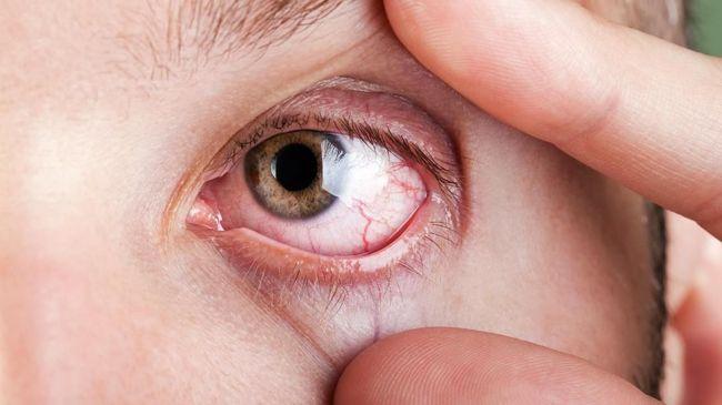 Cara Mengatasi dan Mencegah Mata Kering